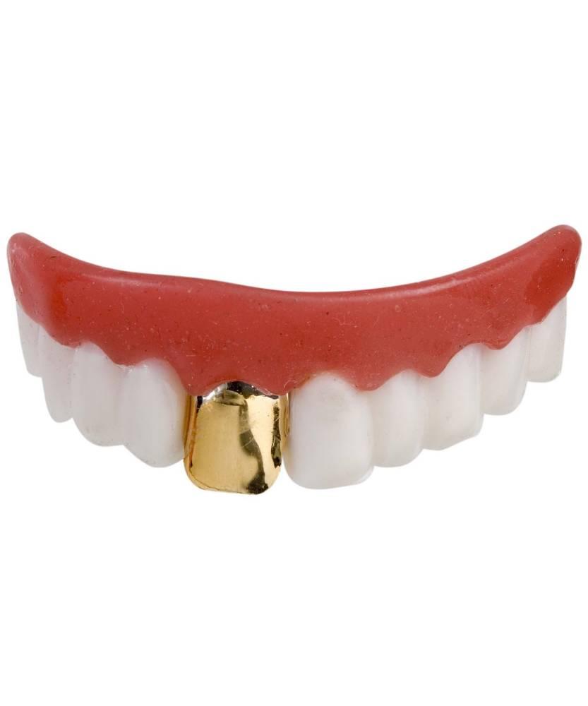 Dentier-avec-une-dent-or