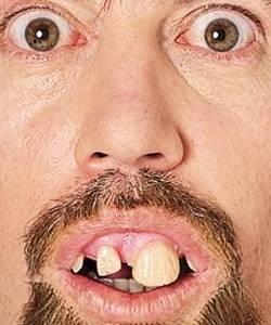 Dentier-style-3