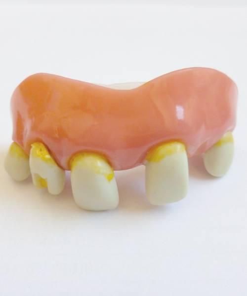 Faux-dentier
