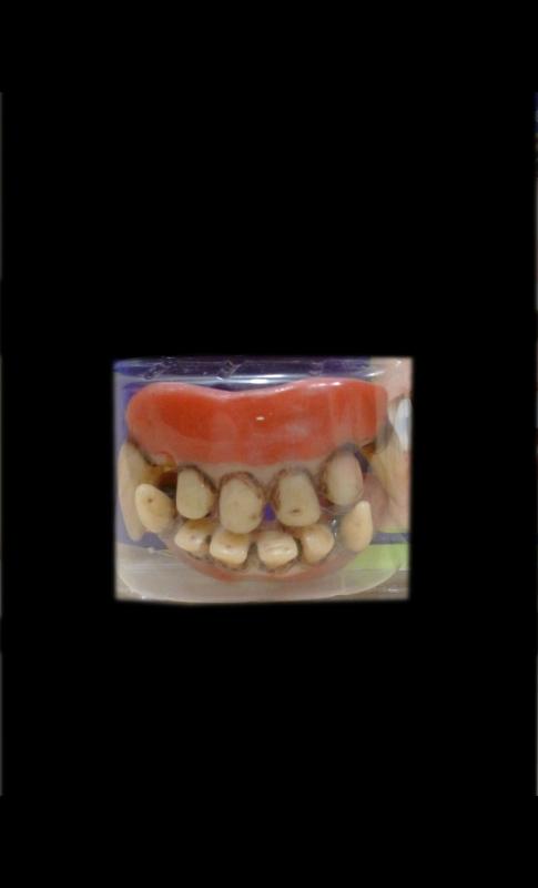 Dentier-vampire