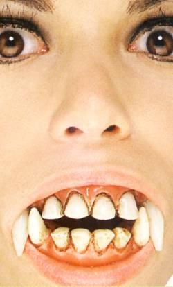 Dentier-de-vampire-2