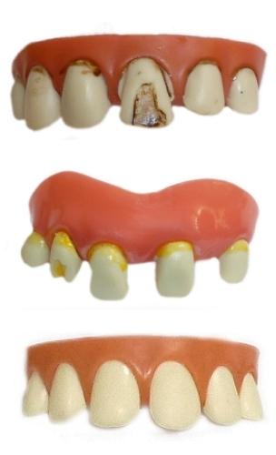 Dentier-série-5
